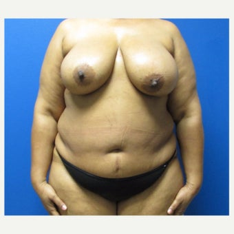 51 year old woman treated with Mommy Makeover before 2018724