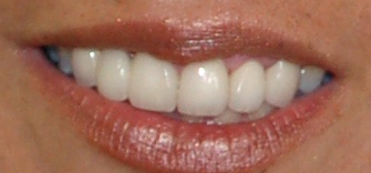 25-34 year old woman treated with Dental Implants