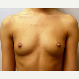 Breast Augmentation before 3680716