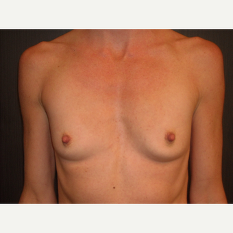 32 year old mother of 2 treated for post-partum atrophy with breast augmentation. before 3093905