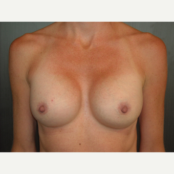 32 year old mother of 2 treated for post-partum atrophy with breast augmentation. after 3093905