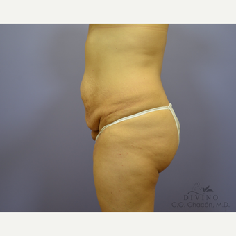 35-44 year old woman treated with Tummy Tuck before 3421966