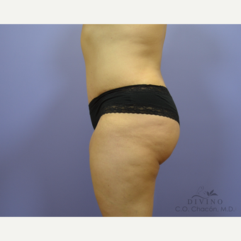 35-44 year old woman treated with Tummy Tuck after 3421966