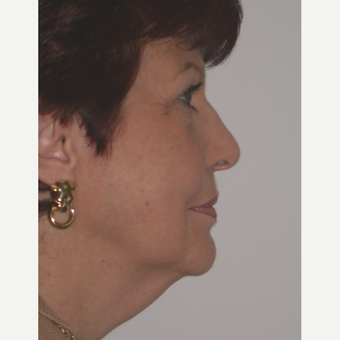 65-74 year old woman treated with Facelift before 3261767