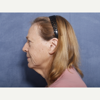 55-64 year old woman treated with Neck Lift (view 2 of 2) before 3176010