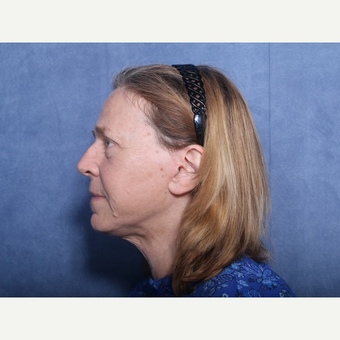 55-64 year old woman treated with Neck Lift (view 2 of 2) after 3176010
