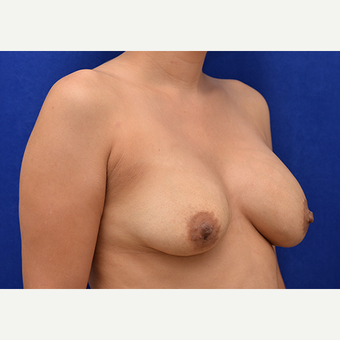 25-34 year old woman treated with Breast Implant Revision before 3061172