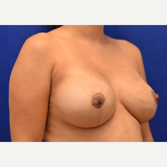 25-34 year old woman treated with Breast Implant Revision after 3061172