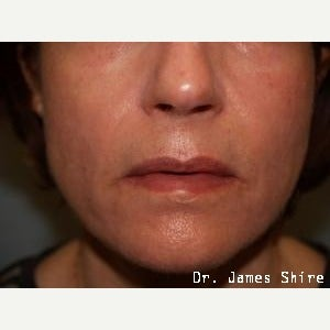45-54 year old woman treated with Chemical Peel after 1547021