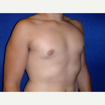 25-34 year old man treated with Male Breast Reduction after 3727313