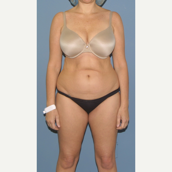 45-54 year old woman treated with Tummy Tuck before 3558597