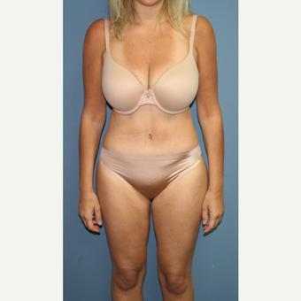 45-54 year old woman treated with Tummy Tuck after 3558597
