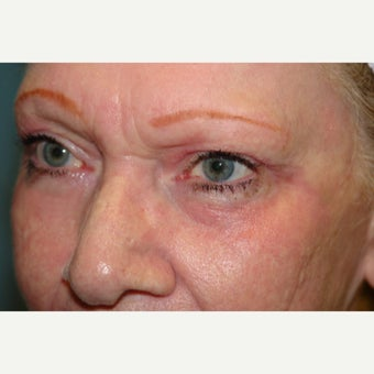 65-74 year old woman treated with Chemical Peel after 1779759