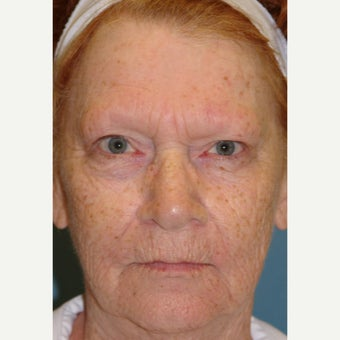 65-74 year old woman treated with Chemical Peel 1779759