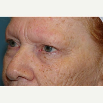 65-74 year old woman treated with Chemical Peel