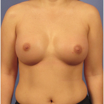 25-34 year old woman treated with Breast Augmentation after 3106692