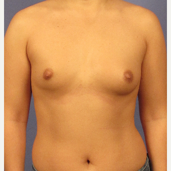 25-34 year old woman treated with Breast Augmentation before 3106692