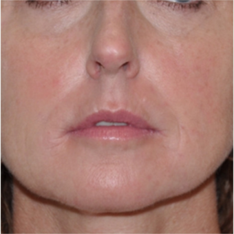 Filler treatment for under eye and facial rejuvenation in 44 year old patient.