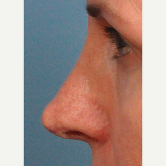 45-54 year old woman treated with Rhinoplasty before 3697206