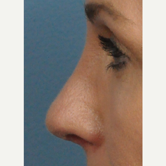 45-54 year old woman treated with Rhinoplasty after 3697206