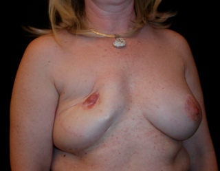 Breast Reconstruction  1357613