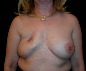 Breast Reconstruction  before 1357613