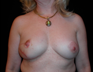 Breast Reconstruction  after 1357613