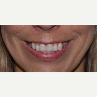 "45-54 year old woman with a ""gummy smile' treated with Botox after 3642168"