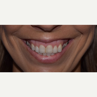 "45-54 year old woman with a ""gummy smile' treated with Botox before 3642168"