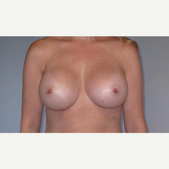 45-54 year old woman treated with Breast Augmentation after 3508536