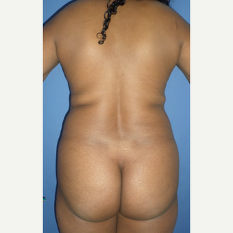 25-34 year old woman treated with Liposuction before 3228231