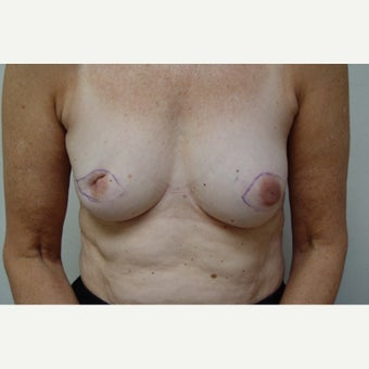 55-64 year old woman treated with Breast Reconstruction before 1898011