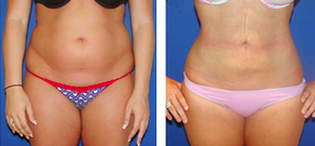 Liposuction Before & After  after 1110866