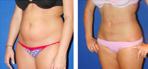 Liposuction Before & After  before 1110866