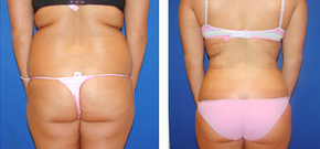 Liposuction Before & After  1110866