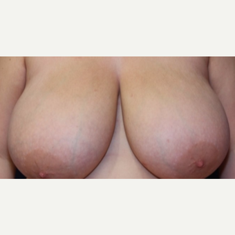 23 year old woman treated with a superior medial pedicle breast reduction before 3054800