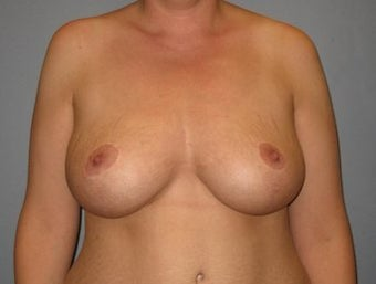37 Year Old Breast Reduction Patient after 1355934
