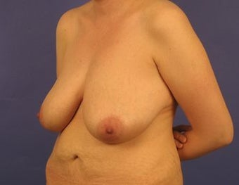 37 Year Old Breast Reduction Patient 1355934