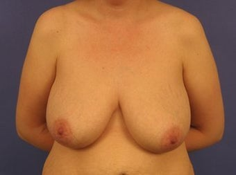 37 Year Old Breast Reduction Patient before 1355934