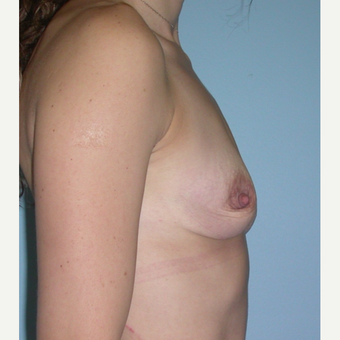 33 year old mother of 4.  Silicone breast augmentation.  375 cc high profile.  A to small C before 3292115