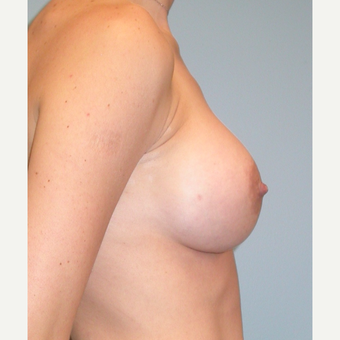 33 year old mother of 4.  Silicone breast augmentation.  375 cc high profile.  A to small C after 3292115