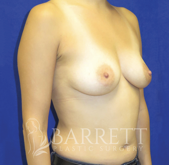 35-44 year old man treated with Breast Augmentation 2068033