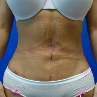Liposuction with Fat Transfer to the hips after 1569643