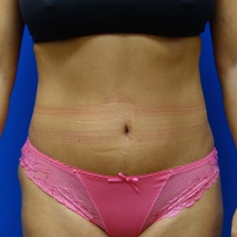 Liposuction with Fat Transfer to the hips before 1569643