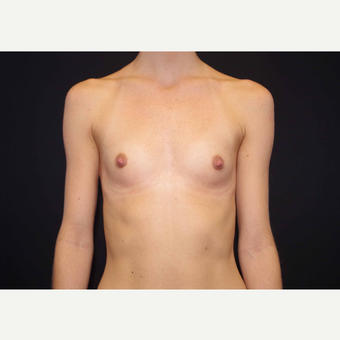 25-34 year old woman treated with Breast Implants before 3440981