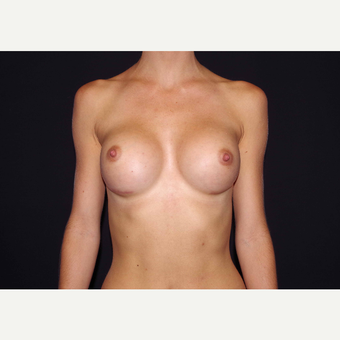 25-34 year old woman treated with Breast Implants after 3440981