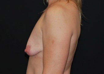 Breast Lift before 949236