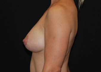 Breast Lift after 949236