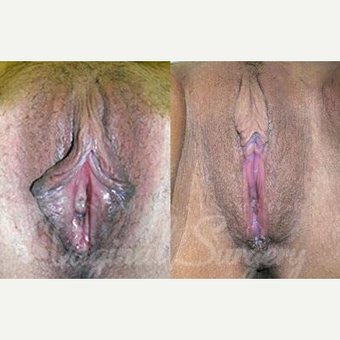 45-54 year old woman treated with Vaginal Rejuvenation before 3769183