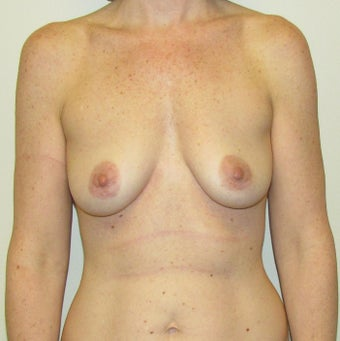 39 Year Old Female Gummy Bear Sientra Breast Implants before 1349084